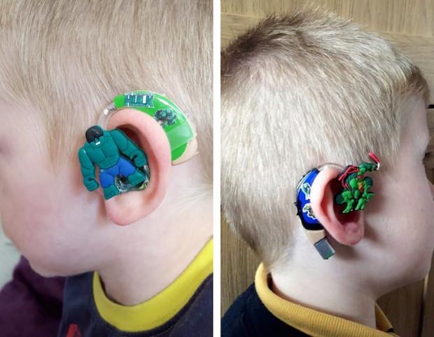 Načúvací prístroj pre syna v podaní kreatívnej maminy 6