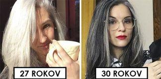 Grombre | Ženy ukazujú prirodzenú krásu šedín, za ktoré sa nehanbia